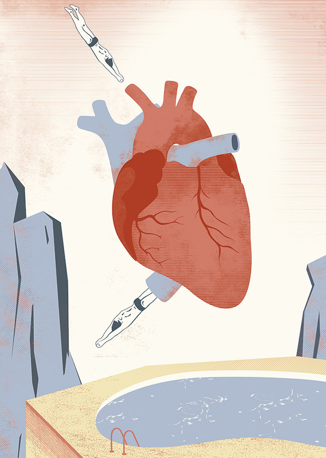 ARcardiogramas-golpe