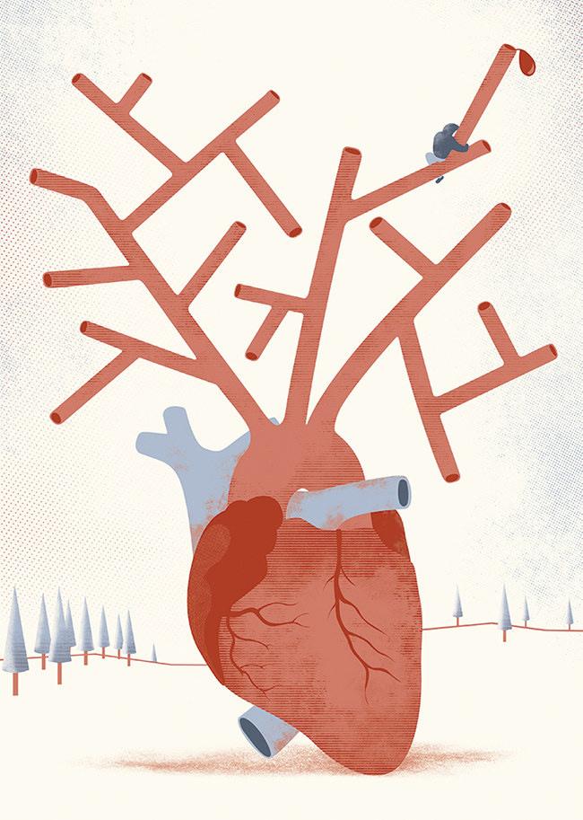 ARcardiogramas-aguante
