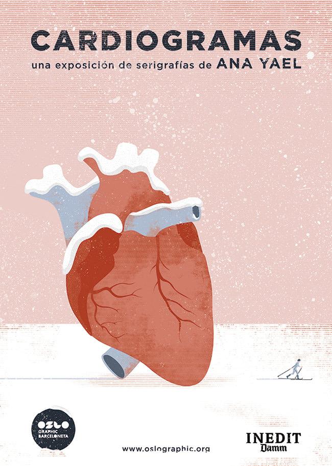 ARcardiogramas