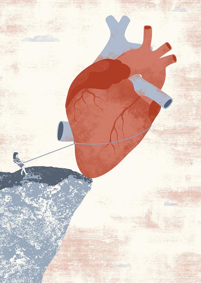 ARcardiogramas-limite