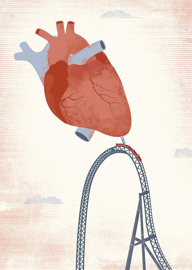 ARcardiogramas-camino