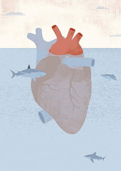 cardiogramas-acecho