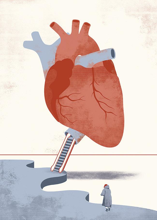 ARcardiogramas-decision