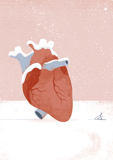 cardiogramas2
