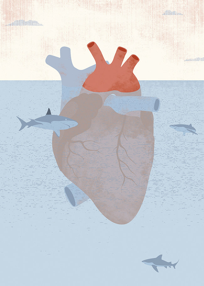 ARcardiogramas-acecho